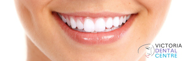Teeth whitening London Victoria Dental Centre